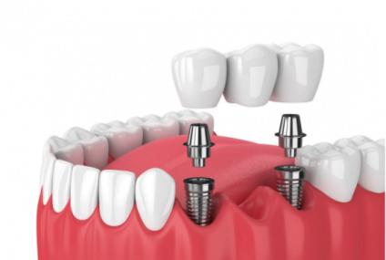 Ce sunt si de ce sunt recomandate implanturile dentare?